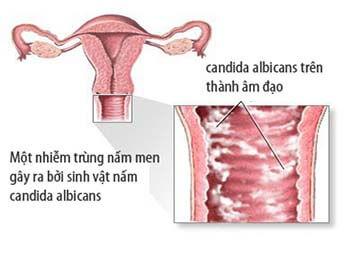 Viêm âm đạo gây vô sinh ở nữ